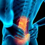 Effect of Radiofrequency Denervation on Pain Intensity Among Patients With Chronic Low Back Pain