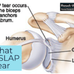What is a SLAP tear?