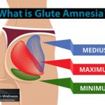 What is Glute Amnesia